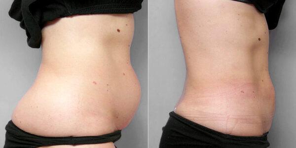 Före- och efterbild av kvinna i profil, som genomgått en fettsugning mage, midja och höft.