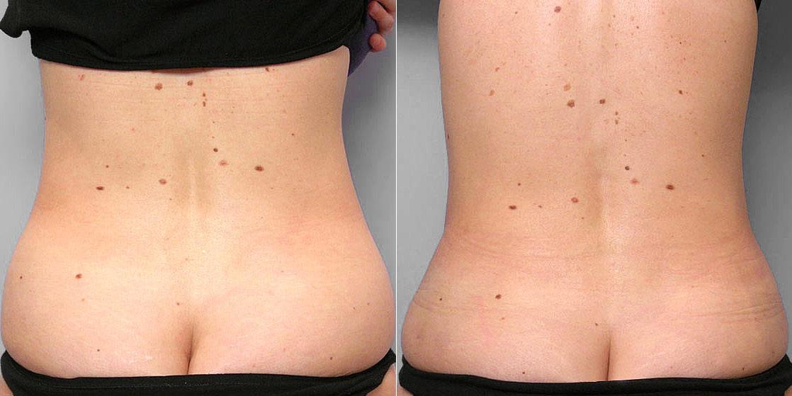 Före- och efterbild av rygg på person som genomfört fettsugning av mage, midja och höft.