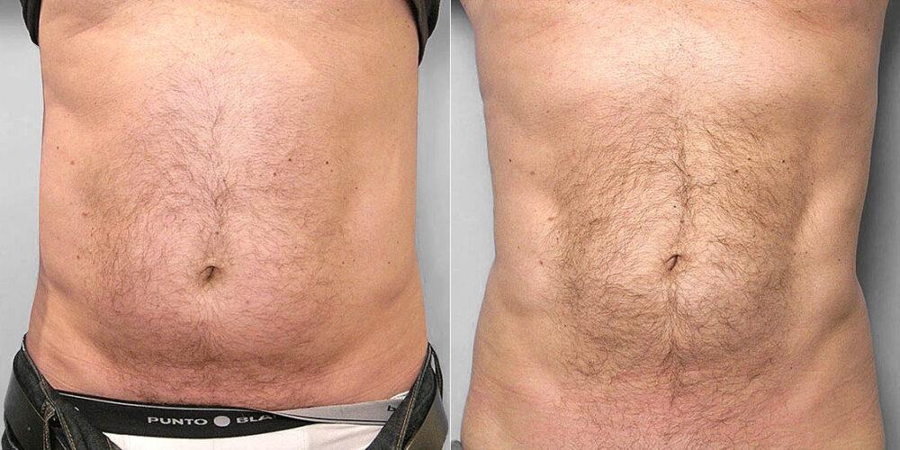 Före- och efterbild av man som genomgått en fettsugning av mage, midja och höft.