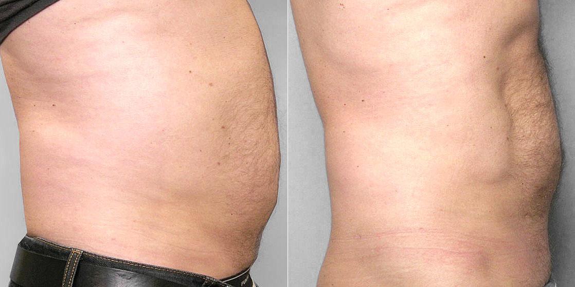 Före- och efterbild höger profil, av person som gjort fettsugning av mage och midja.