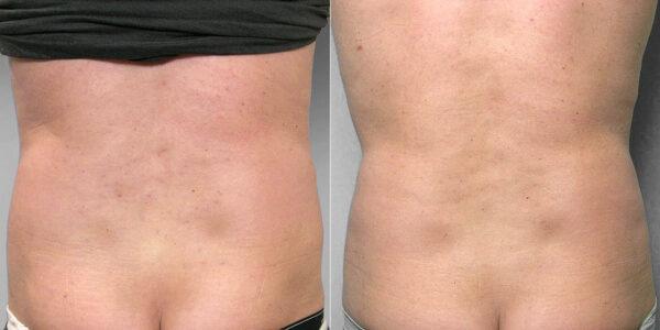 Före- och efterbild på rygg av person som gjort fettsugning av mage och midja.