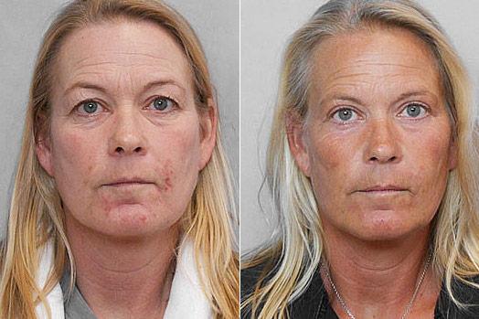 Övre ögonlocksplastik - bild på kvinna före och efter behandling.