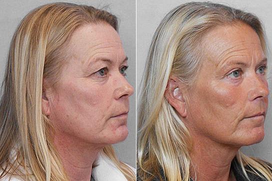 Övre ögonlocksplastik - bild på kvinna i höger halvprofil, före och efter behandling.