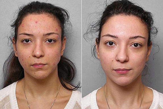 Före- och efterbild på kvinna som genomgått behandling mot acne med Obagi hudbehandling.