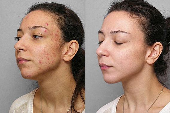 Före- och efterbild på kvinna ur vänster profil, som genomgått behandling mot acne med Obagi hudbehandling.
