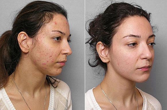 Före- och efterbild på kvinna ur höger profil, som genomgått behandling mot acne med Obagi hudbehandling.