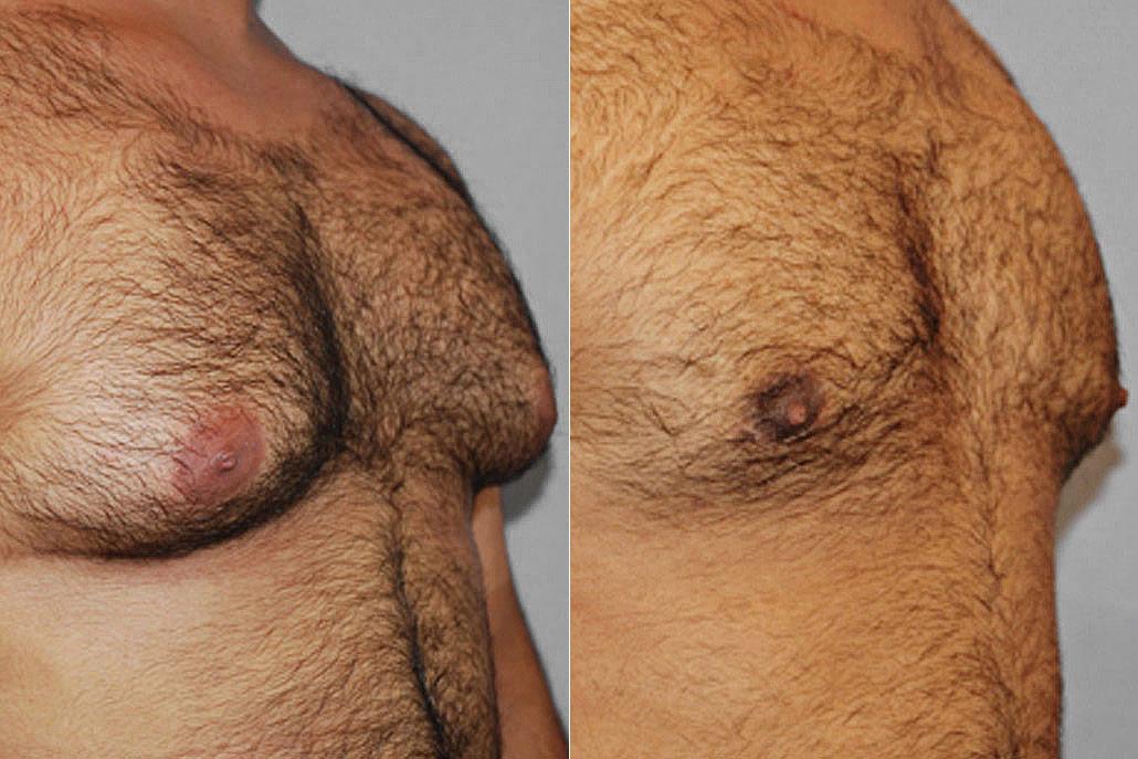 Bild av mans högra halvprofil, före och efter genomförd bröstreduktion för gynekomasti.