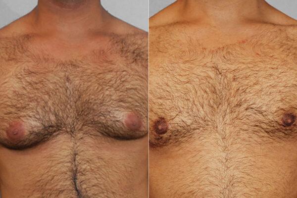 Bild av man före och efter genomförd bröstreduktion för gynekomasti.