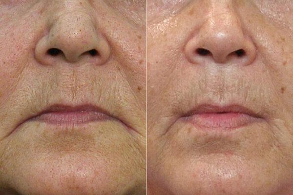 Före- och efterbild på person som genomfört munvinkelplastik.