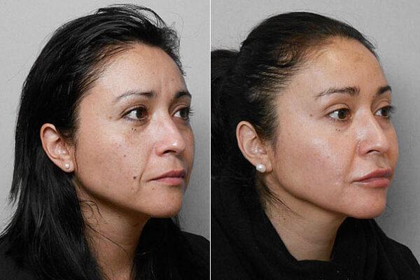 Före- och efterbild på kvinna i höger profil, som genomgått medicinskt hudvårdsprogram med Obagi Bluepeel.
