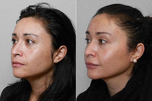 Före- och efterbild på kvinna i vänster profil, som genomgått medicinskt hudvårdsprogram med Obagi Bluepeel.