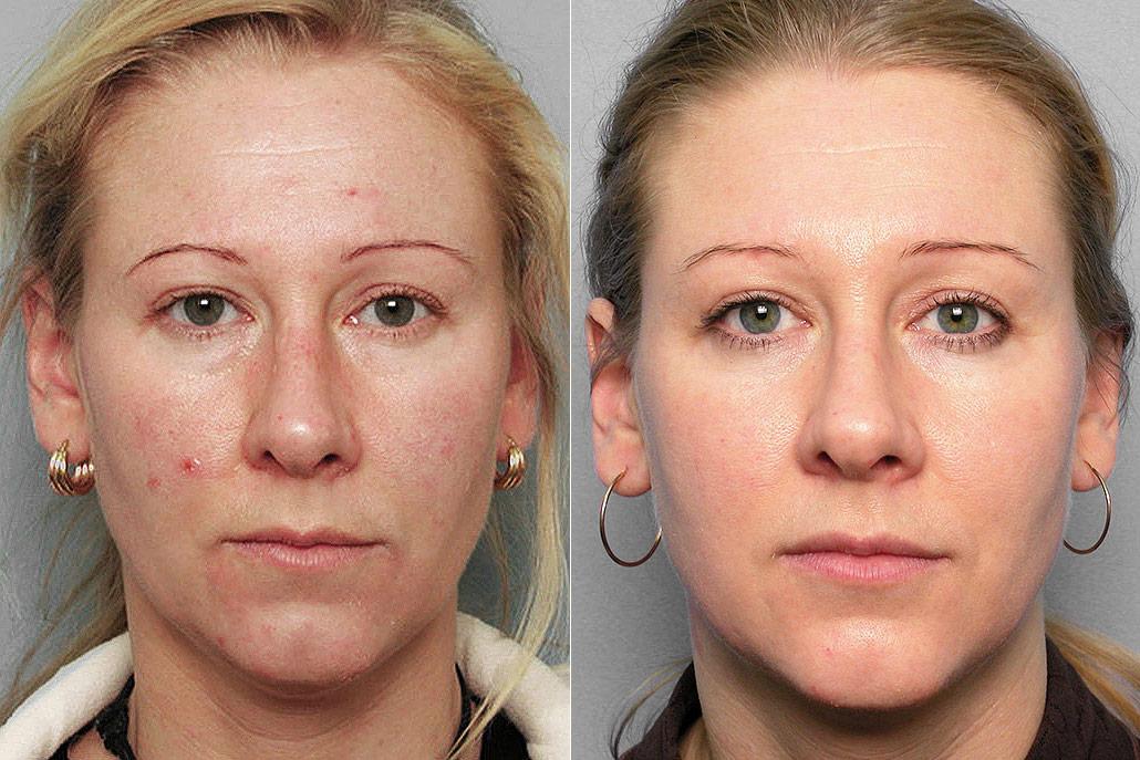Före och efter-bild på kvinna som genomgått Obagis hudvårdsprogram och IPL-behandling