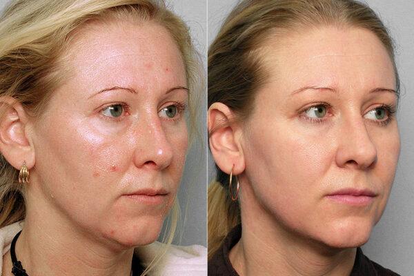 Före och efter-bild på kvinna i halvprofil, som genomgått Obagis hudvårdsprogram och IPL-behandling