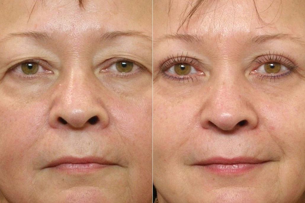 Före- och efterbild på kvinna som genomfört en ögonlocksplastik av övre ögonlock med Ultrapulslaser.