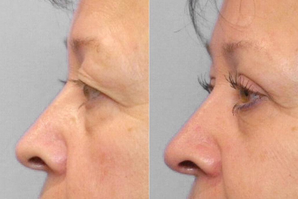 Före- och efterbild på kvinna ur vänsterprofil som genomfört en ögonlocksplastik av övre ögonlock med Ultrapulslaser.