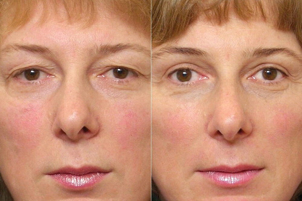 Detaljbild på kvinna före och efter en genomförd övre ögonlocksplastik med laser.