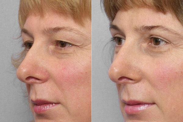 Detaljbild på kvinna i halvprofil före och efter en genomförd övre ögonlocksplastik med laser.