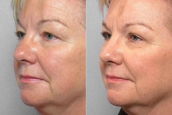 Detaljbild på kvinna i halvprofil före- och efter en genomförd ögonlocksplastik av övre ögonlock.