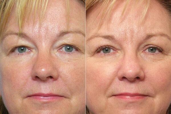 Detaljbild på kvinna före- och efter en genomförd ögonlocksplastik av övre ögonlock.