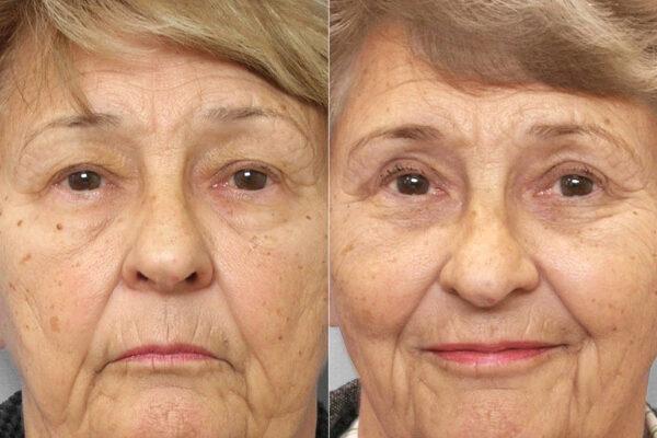 Bild från före- och efter en genomförd ögonlocksplastik av undre och övre ögonlock.