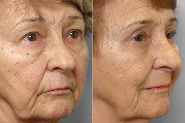 Bild på kvinna ur halvprofil, från före- och efter en genomförd ögonlocksplastik av undre och övre ögonlock.