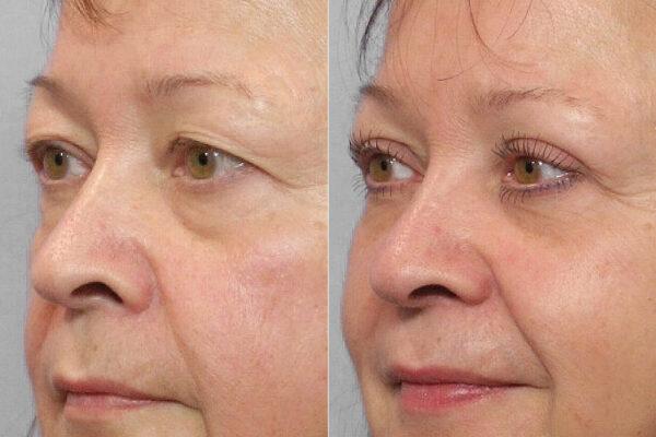 Före- och efterbild på kvinna ur högerprofil, som genomfört en ögonlocksplastik av övre ögonlock med Ultrapulslaser.