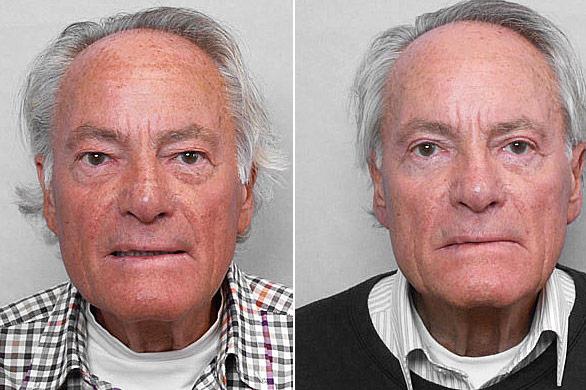 Före- och efterbild på man som genomgått undre + övre ögonlocksplastik.