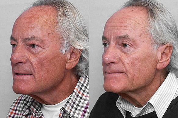 Före- och efterbild på man i vänster halvprofil som genomgått undre + övre ögonlocksplastik.