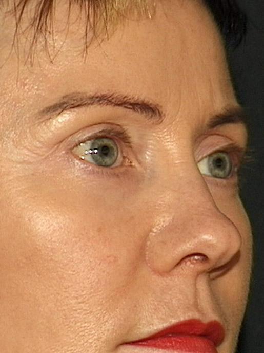 pannlyft och ögonlockskirurgi på conturkliniken