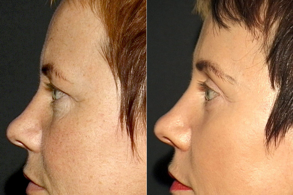 Detaljbild på kvinnas vänstra profil, före och efter ögonlocksplastik, peeling, pannlyft samt hudvårdsbehandling.