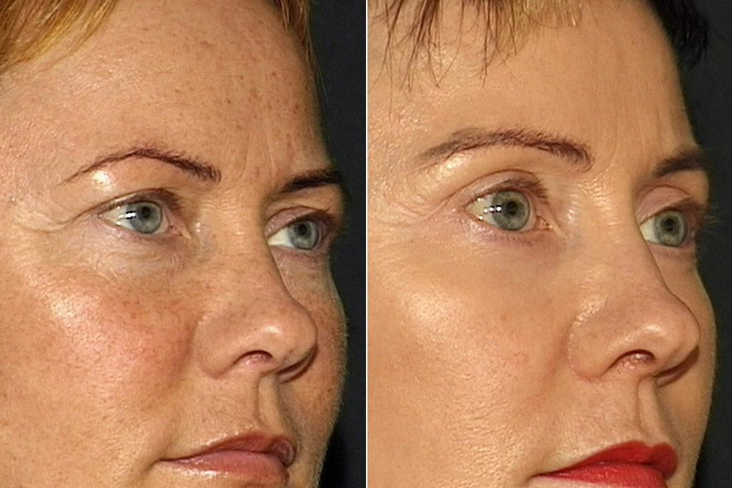 Detaljbild på kvinna i höger halvprofil, före och efter ögonlocksplastik, peeling, pannlyft samt hudvårdsbehandling.