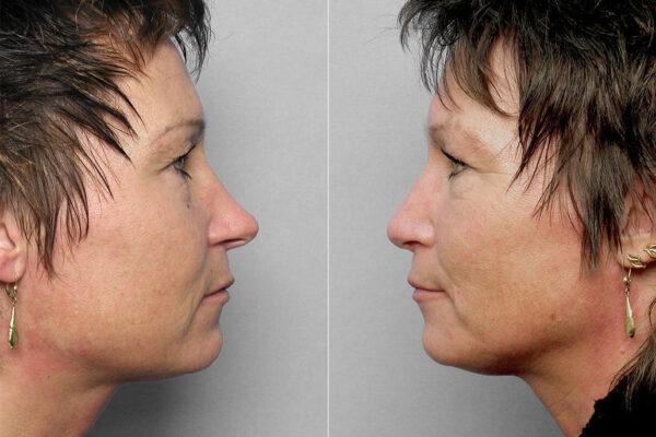 Före- och efterbilder på kvinna i höger och vänster profil som genomfört en näsoperation med nästipplastik.