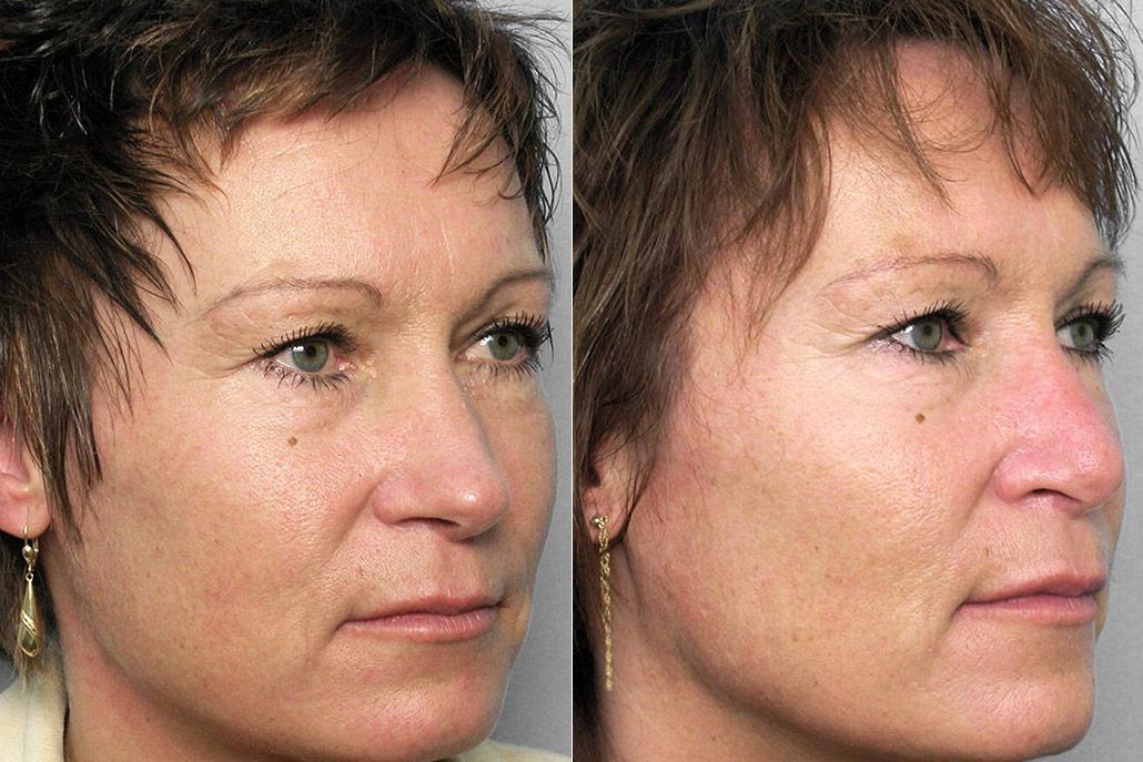 Före- och efterbilder på kvinna i halvprofil som genomfört en näsoperation med nästipplastik.