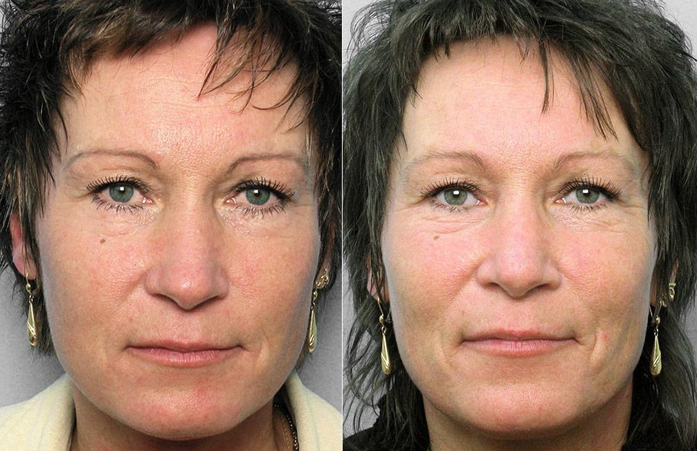 Före- och efterbilder på kvinna som genomfört en näsoperation med nästipplastik.