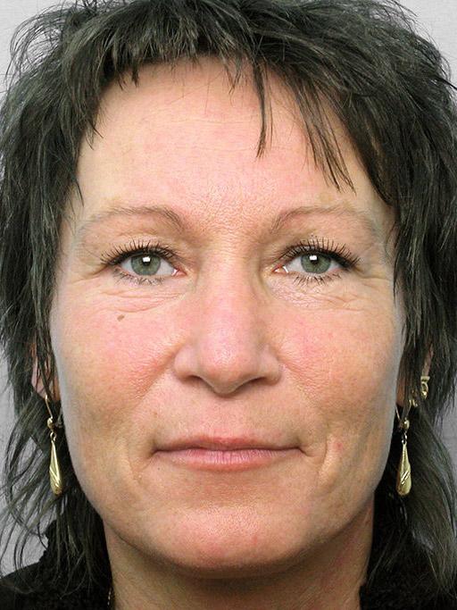 Susanne har gjort näsplastik på conturkliniken