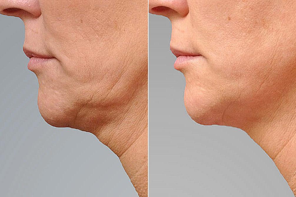 Detaljbild på vänster halvprofil som visar resultatet före och efter ultherapy av haka och käklinje.