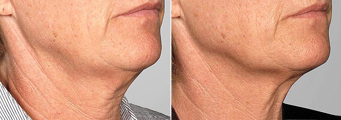 Detaljbild på kvinna ur höger halvprofil, som visar resultatet före och efter ultherapy av haka och käklinje.