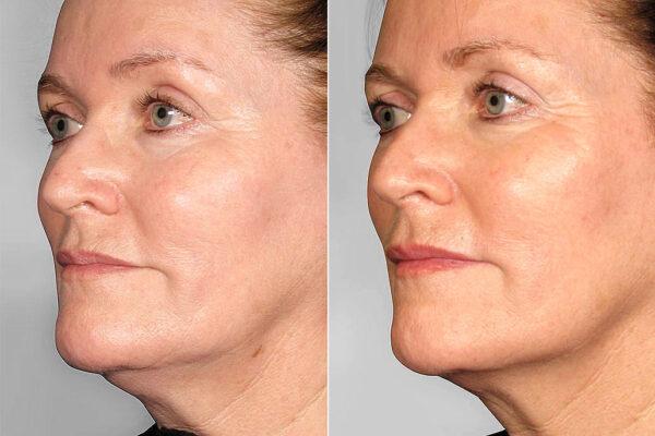 Före och efter-bild på kvinna i vänster halvprofil, som genomgått ultherapy av haka, samt käklinje.