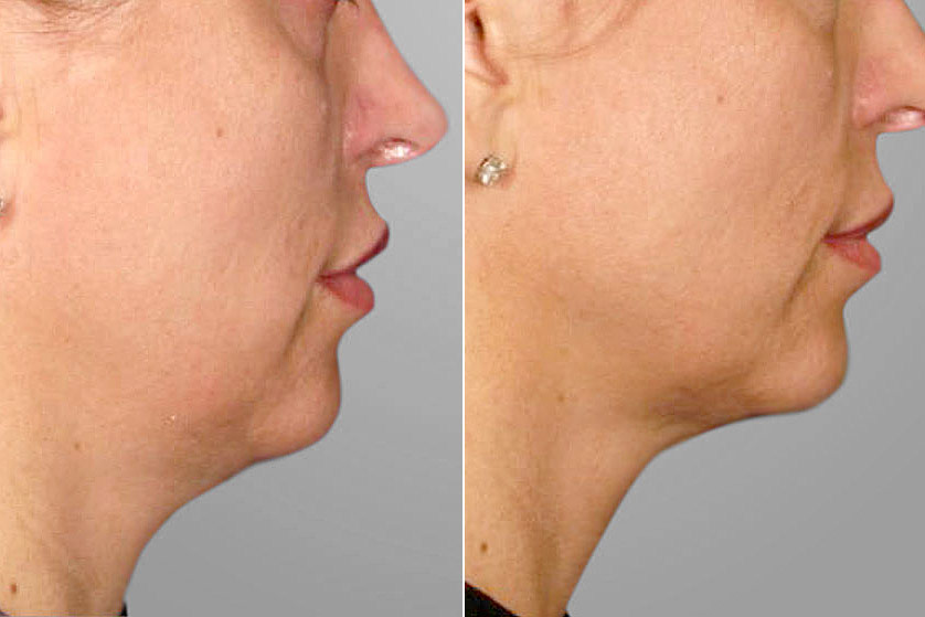 Detaljbild på höger profil av resultatet före och efter genomförd ultherapy av haka och käklinje.