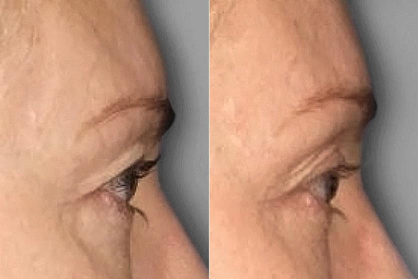 Före och efter-bild på högerställd profil av kvinna som genomgått ultherapy av övre ögonlock.