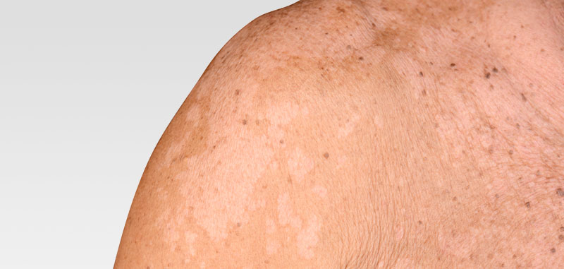 Huden svamp i Svamp i