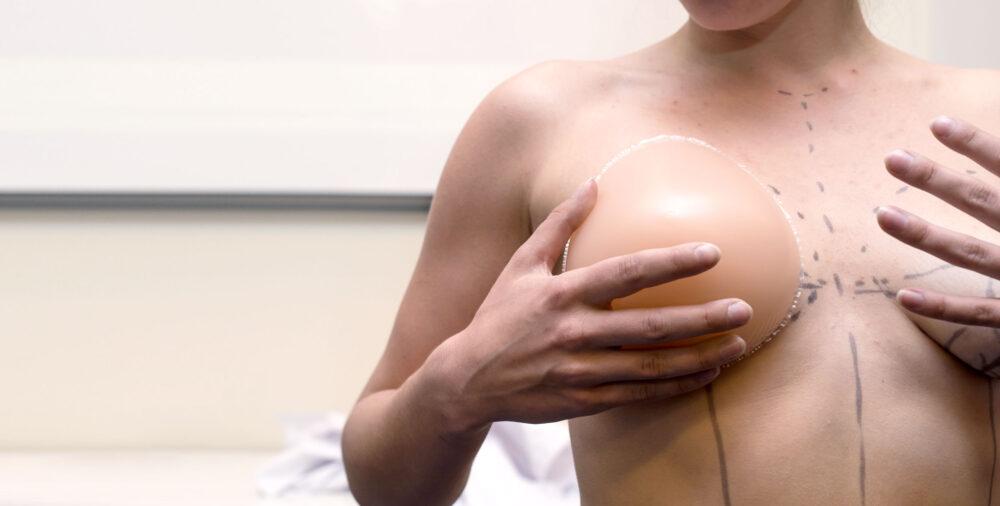 förberedelse inför bröstoperation med implantat