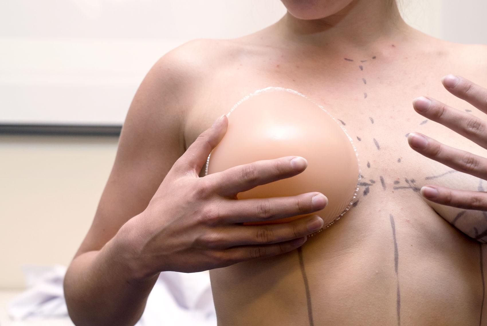 väljer storlek på bröstimplantat inför bröstoperation