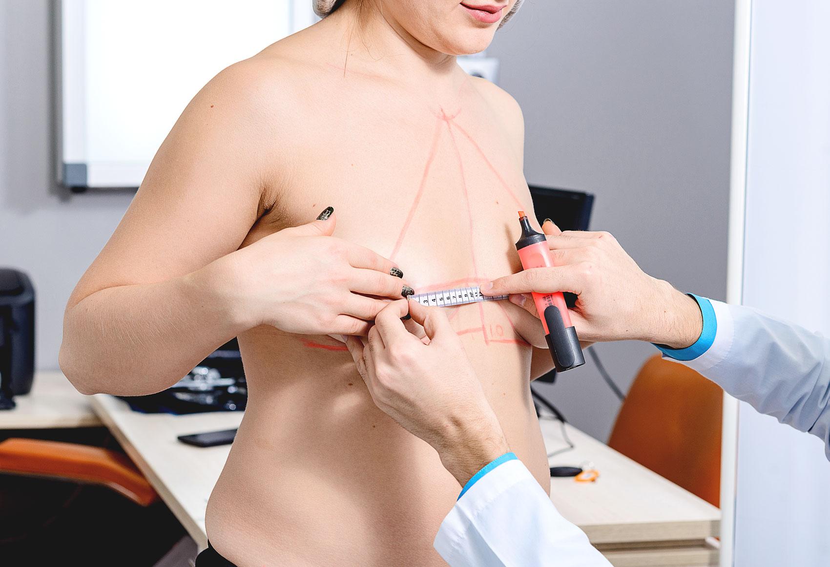 inför bröstoperation på kvinna