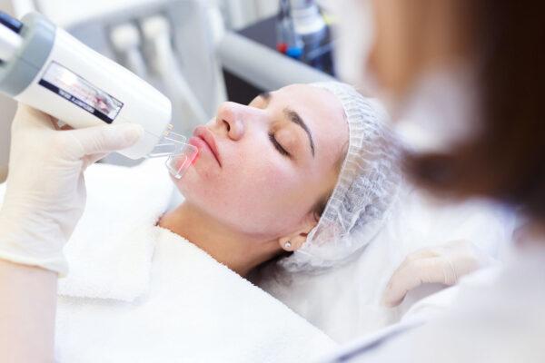 ansiktsbehandling med laserpeeling på tjej
