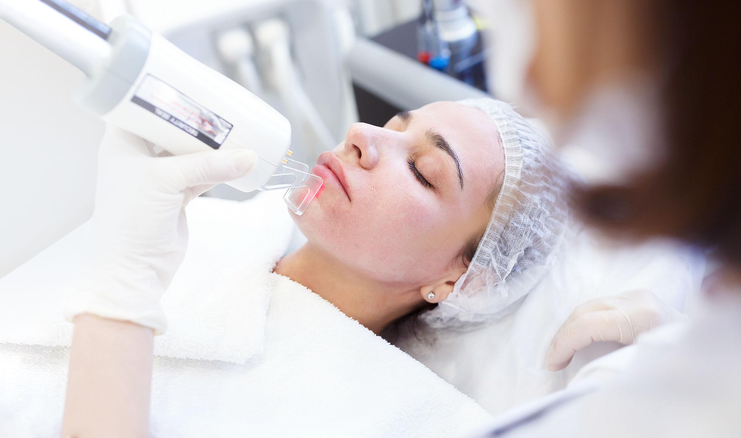 ansiktsbehandling med laserpeeling