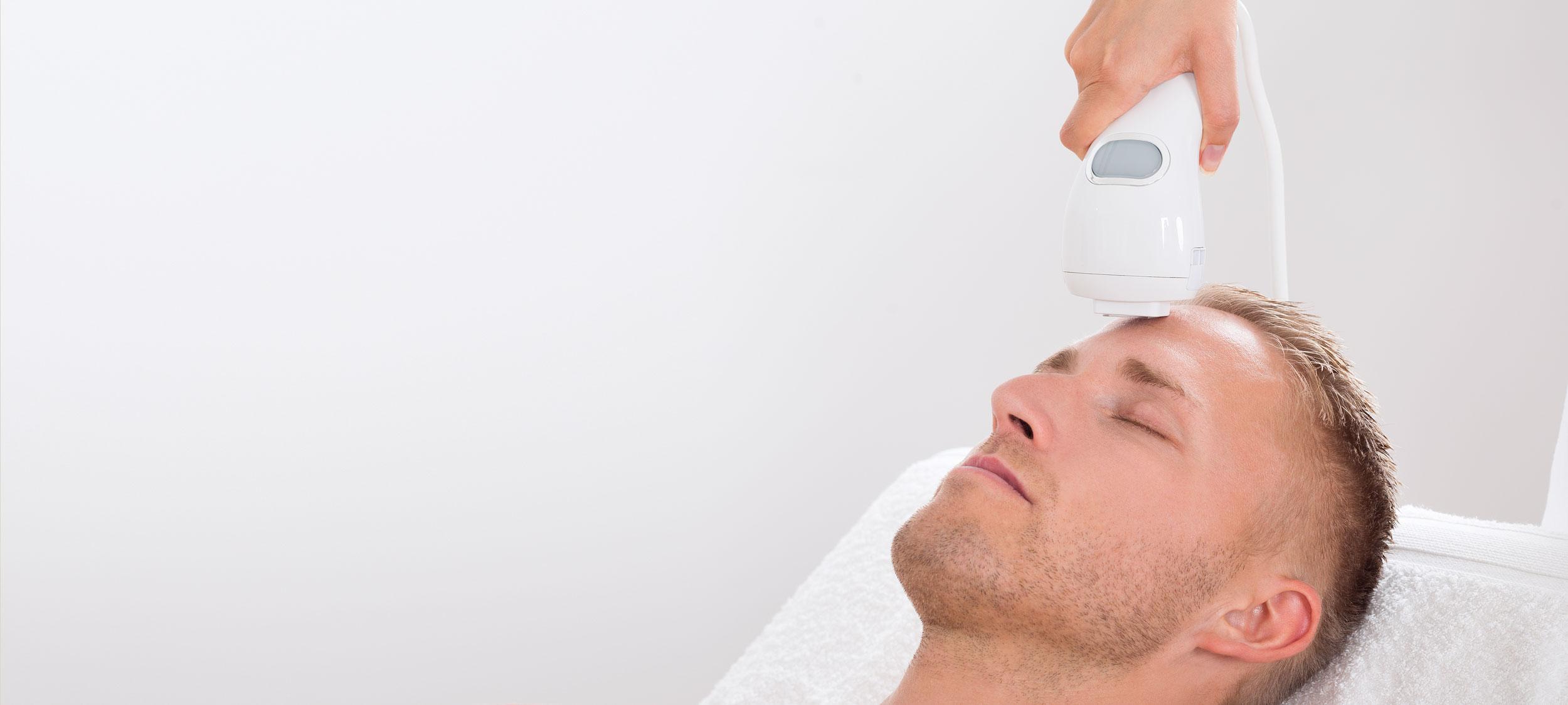 laserbehandling i ansiktet på man