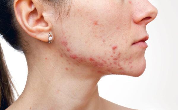 acne i ansiktet på tjej