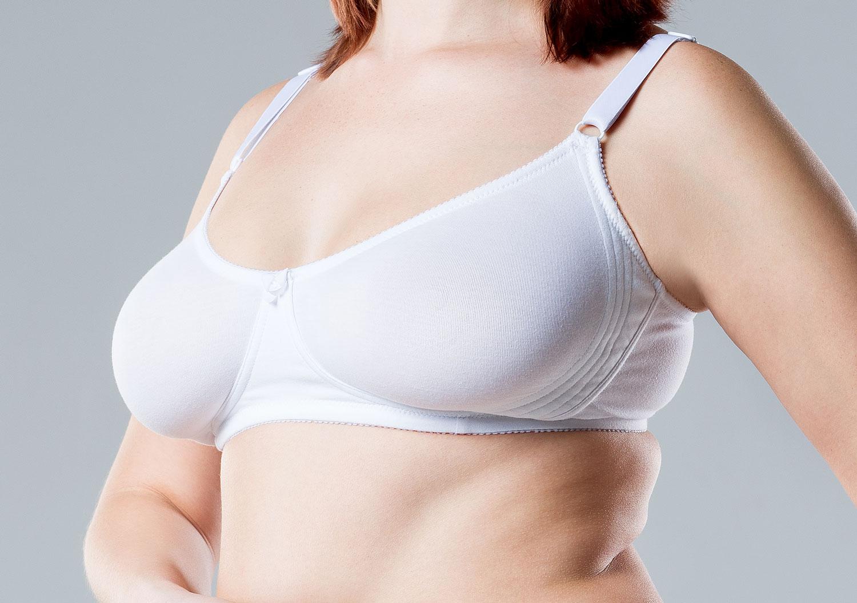 Bröstförminskning hos kvinna