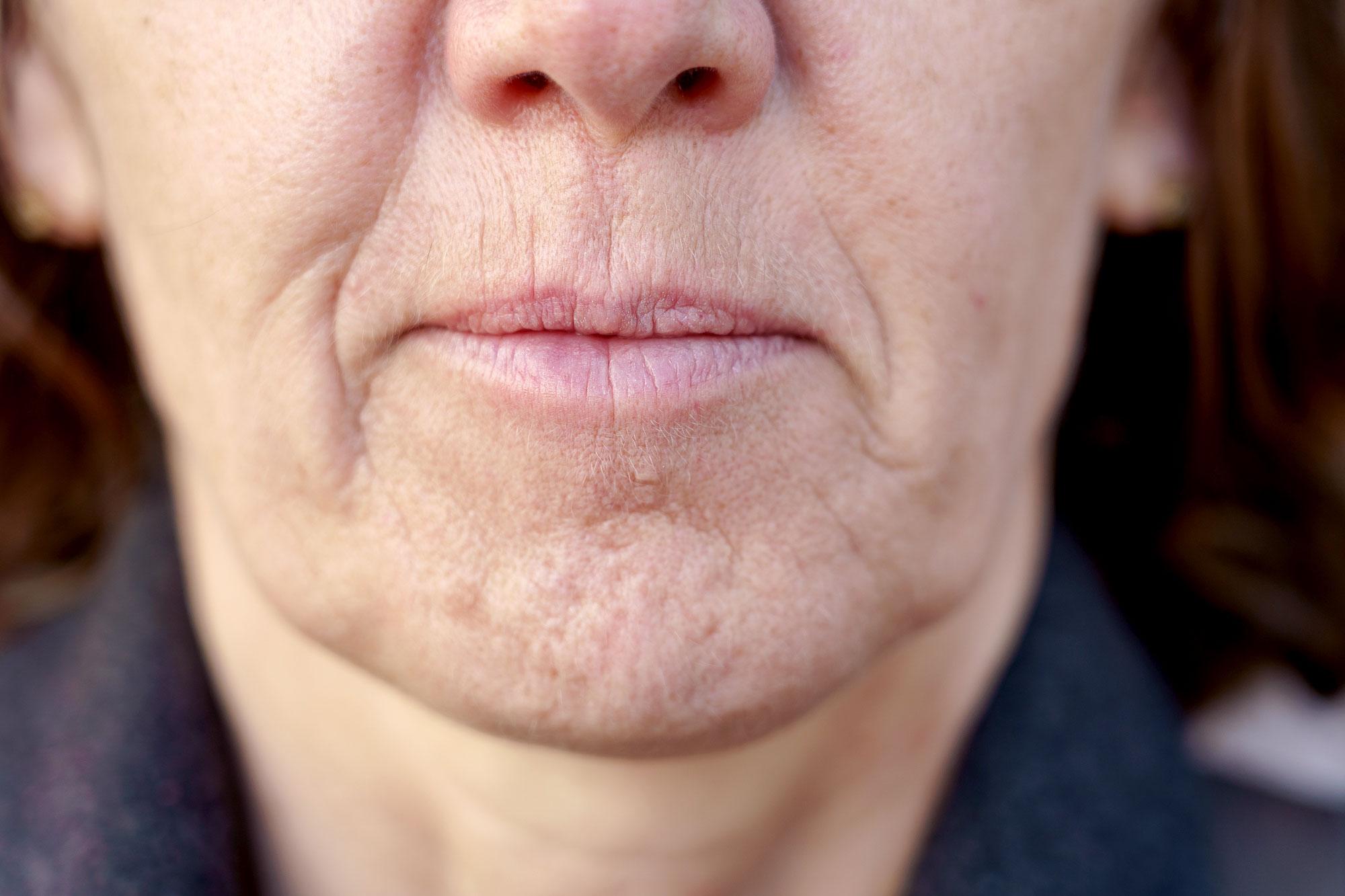 ändra munvinkel med munvinkelskirurgi